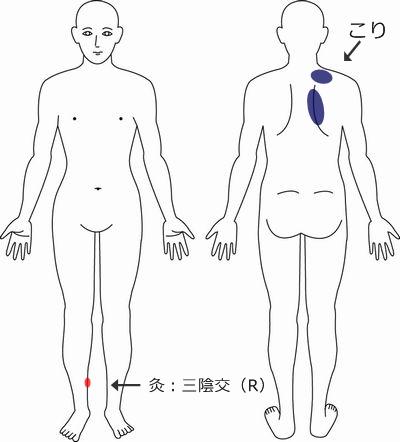 逆子 症例3