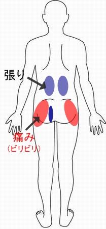 腰 症例10