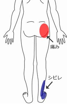 腰 症例2