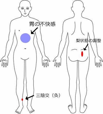 逆子 症例4