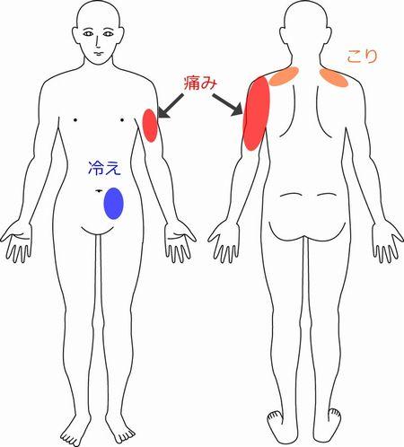 肩 症例1