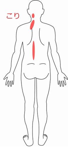 肩こり 症例4