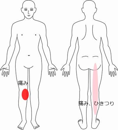 膝 症例3
