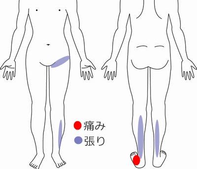 足関節 症例1