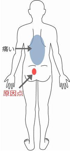 腰痛 症例8