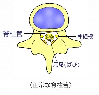 腰 症例2 脊柱菅狭窄症