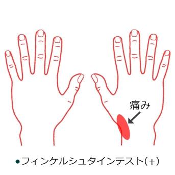 腱鞘炎 症例2